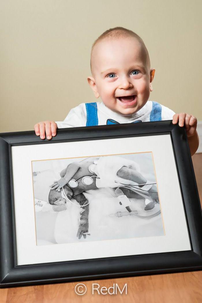 「未熟児」の成長を記録した写真に勇気がもらえる