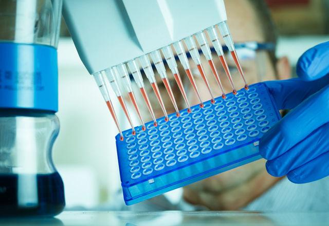 除去すると「寿命が60%伸びる」遺伝子が存在すると判明(米・研究)
