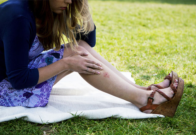 """蚊に刺されやすいのは、DNAのせいだった!?新発見から期待される""""刺されない薬"""""""